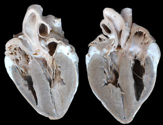 06-2b-ox-heart.jpg