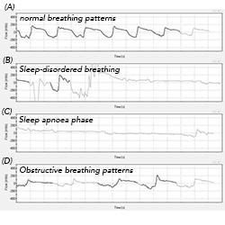 Continuous flow trace (A-B-C-D) indicates sleep-disordered breathing
