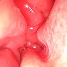 Hypertrophic nasal turbinates obstruct the nasal cavity